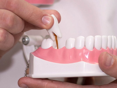 Протезирование зубов: виды искусственных зубов