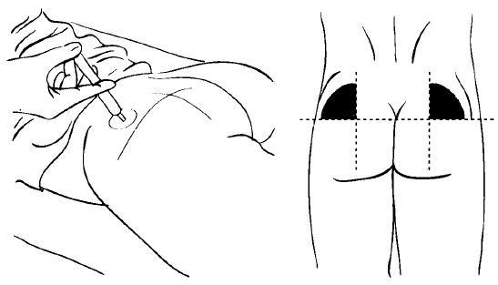 Как сделать укол в мышцу фото 46